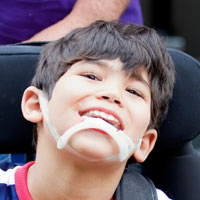 Special Needs Childrens Dentist Langley